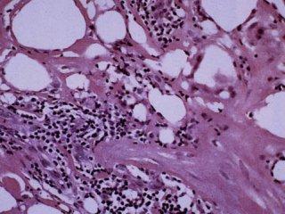 بیماری هوچکین (2)