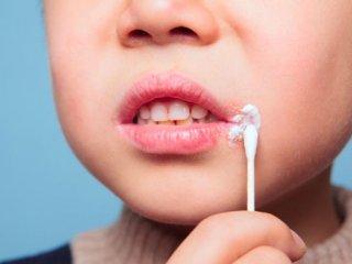 گرفتاری هایویروس تبخال برای کودکان