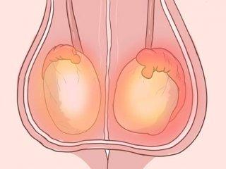 دانستنی های مهم درباره بیماری اپیدیدیمیت یا عفونت بیضه در مردان