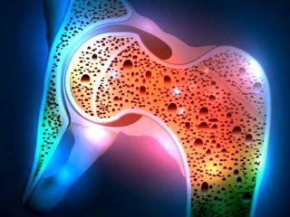 پوکی استخوان ؛ از علت تا درمان