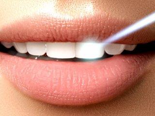 آیا بلیچینگ دندان ضرر هم دارد؟