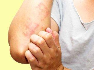 التهابات پوستی و رابطه آن با کووید-۱۹