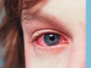 قرمزی چشم؛ خطراتی که تهدیدتان میکند!