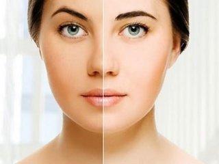 چند راهکار طب سنتی برای داشتن پوست شفاف