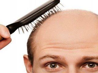 درمان ریزش مو با یک گیاه دارویی