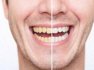 این عادتهای غلط دندانهای شما را زرد میکنند