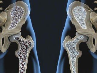 نکاتی مهم راجع به پوکی استخوان