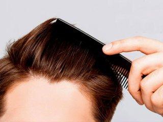 راهکارهای طب سنتی برای جلوگیری از ریزش مو