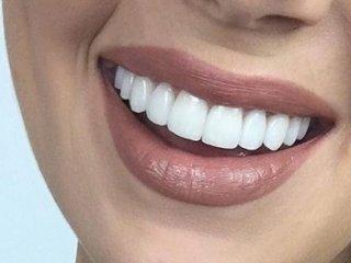 خوراکیهایی که دندانهایتان را نابود میکند
