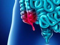 درد آپاندیس چگونه شروع می شود؟