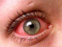 قرمز شدن چشمها؛ از علت تا راه درمان