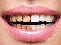 عادتهای ساده ای که دندانهای ما را خراب میکند
