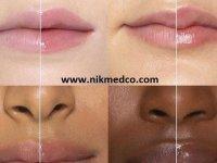 عادتهای روزمره ای که به دندان ها آسیب می زند