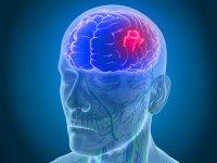 علائمی هشدار دهنده که گویای سکته مغزی است