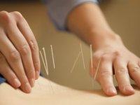 طب سوزنی و درمان كمر درد