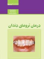 درمان ترومای دندان