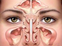 راهکارهای خانگی برای درمان عفونت سینوس