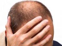 هفت حقیقت درباره الگوی طاسی و ریزش مو