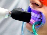 ۹ نکته که باید قبل از سفید کردن دندانها بدانید