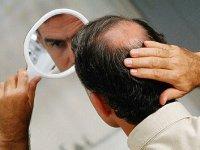 درمان ریزش مو با چند راهکار ساده