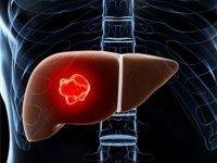 سرطان کبد از پیشگیری تا درمان