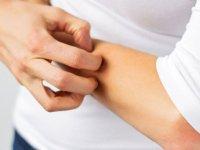 علائم پوستی ناشی از بیماریهای کبدی