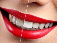 نکات مهم درباره سفید کردن دندان ها