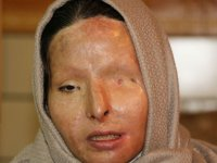 زنان قربانی اسید پاشی برای اولین بار در ایران مدل لباس شدند+عکس