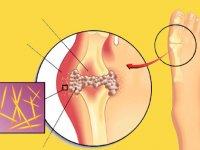 بیماری نقرس؛ دلایل و راهکارهای درمان