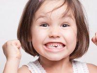 3 روش ساده برای پیشگیری از کج در آمدن دندان