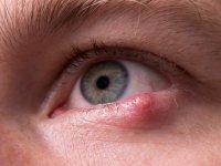 آشنایی با تبخال چشم؛ علایم و درمان