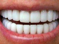 ۴ روش ساده برای جرم گیری دندانها در منزل