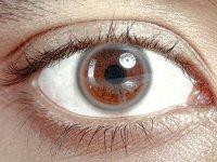 تشخیص کلسترول بالا از روی چشم ها