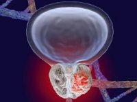 علائم دردناکترین سرطانی که سراغ مردان میآید، چیست؟