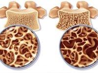 استخوانهایتان به این ریزمغذیها نیاز دارند