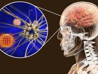 اختلال جدی مغزی در مبتلایان به کرونا