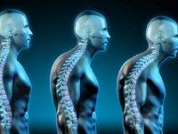 درمان قوز پشت با چند حرکت ساده در خانه