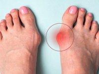 انحراف شست پا را چگونه درمان کنیم؟