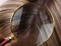 ۱۰ اشتباه رایجی که به موی شما آسیب میرساند+ تصاویر