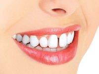 بهترین روش از بین بردن فاصله میان دندانها