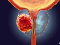 این سرطان مردان به سادگی قابل تشخیص و درمان است