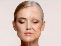 پیری پوست، پیامد آلودگی هوا
