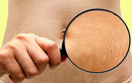 راهکارهای رهایی از ترک های پوستی