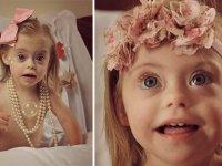 لبخند زیبای دختر 2ساله مبتلا به سندرم داون