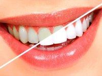 آموزش ساخت محلول معجزه آسا برای جرم گیری دندان